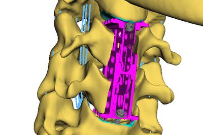 Simulationsmodell der Halswirbelsäule mit eingesetztem Implantat. Bild: Universität Koblenz-Landau