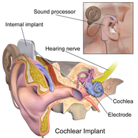 "Description of Cochlea implant.Blausen.com staff. ""Blausen gallery 2014"". Wikiversity Journal of Medicine."