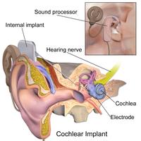 "Description of Cochlea implant.Blausen.com staff. ""Blausen gallery 2014"". Wikiversity Journal of Medicine."