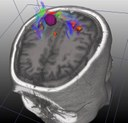 neurosurgery head2